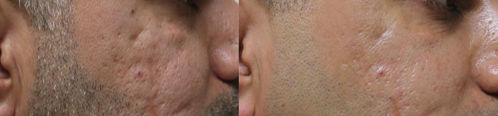 DERMAPEN - Zdjecia przed i po - leczenie blizn potradzikowych 01