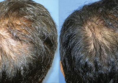 DERMAPEN - Zdjecia przed i po - leczenie lysienia 01